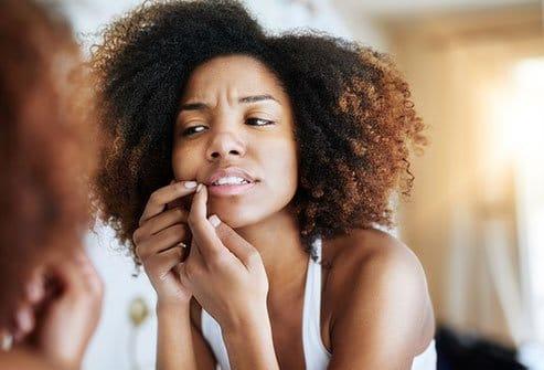 black-woman-skincare-acne