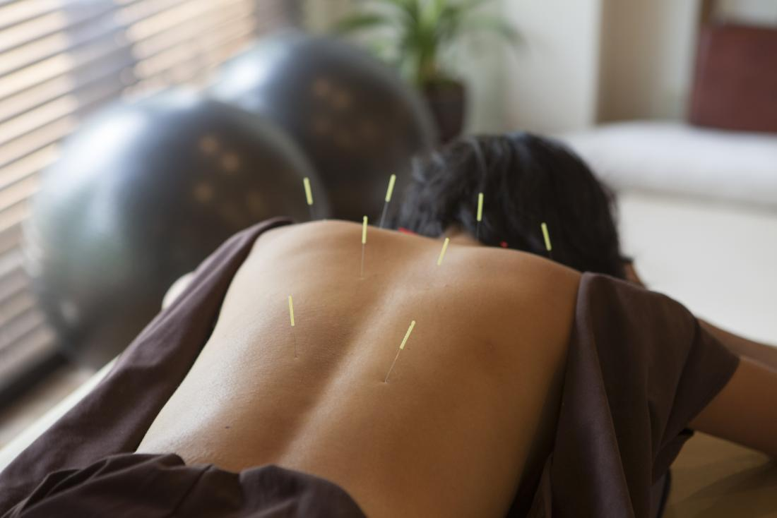 african american woman getting acupuncture on back for self care treatment